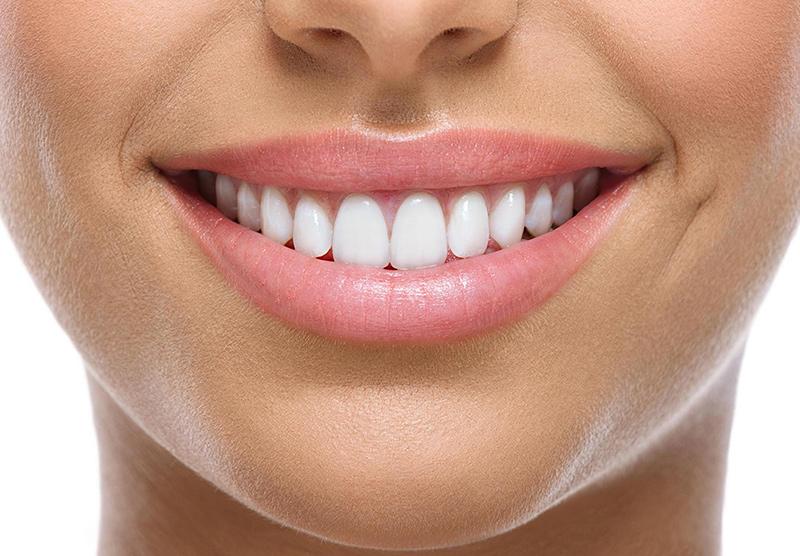 Tooth Whitening Scarborough